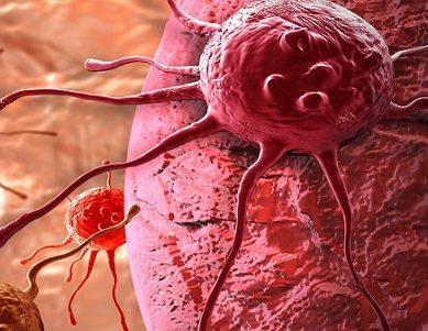 Atezolizumab : η πρώτη ανοσοθεραπεία που έλαβε Ευρωπαϊκή έγκριση για ασθενείς με τριπλά αρνητικό καρκίνο του μαστού