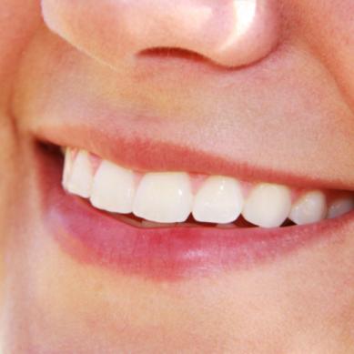 Αραιά δόντια: Που οφείλεται και πως αντιμετωπίζεται η έλλειψη δοντιών