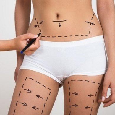 Λιπογλυπτική: Ανάπλαση ολόκληρου του σώματος σε ένα «ραντεβού»