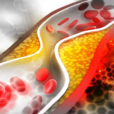 Η υψηλή χοληστερίνη αυξάνει τον κίνδυνο για Αλτσχάιμερ