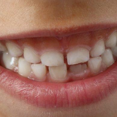 Επιστροφή στο σχολείο: Μην αμελήσετε το τσεκάπ των δοντιών