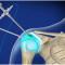 Αρθροσκόπηση γόνατος & ώμου: Μερικές πρακτικές συμβουλές για μετά την επέμβαση