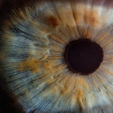 Γλαύκωμα: Ποια είναι τα 9 ύποπτα συμπτώματα που δεν πρέπει ποτέ να αγνοείτε