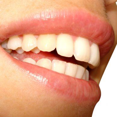 Οδοντικά εμφυτεύματα: Απαντάμε σε συχνές ερωτήσεις