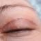 Βλεφαροπλαστική: Πως γίνεται και ποια τα αποτελέσματά της;