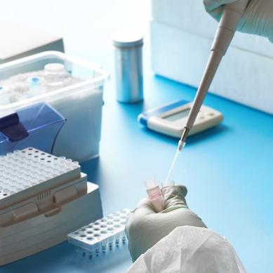 Νέα εξέταση από την Affidea: Ποσοτικός προσδιορισμός ολικών αντισωμάτων έναντι της ακίδας S SARS-CoV-2